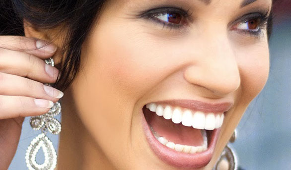 Different Methods for Teeth Whitening