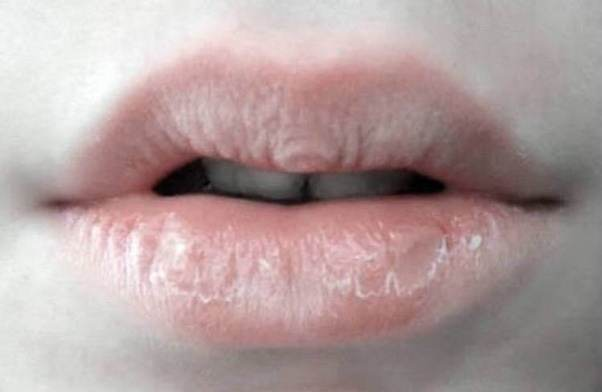 How To Get Rid Of Chapped Dry Lips Fast Overnight
